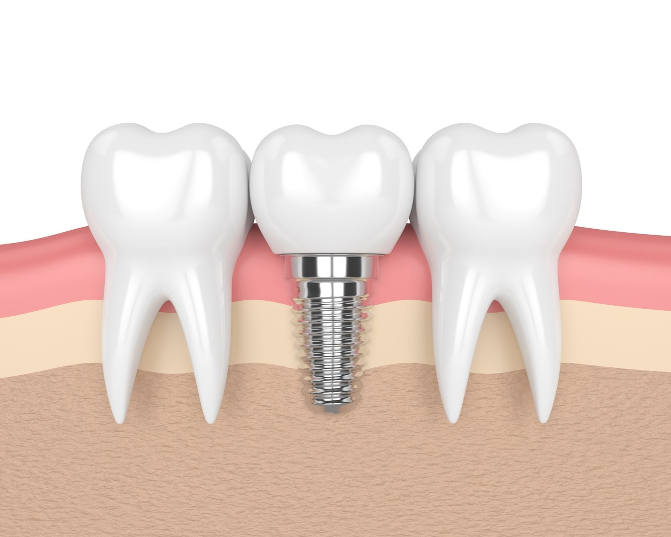 Implant dentaire : y a-t-il des contres-indications ?